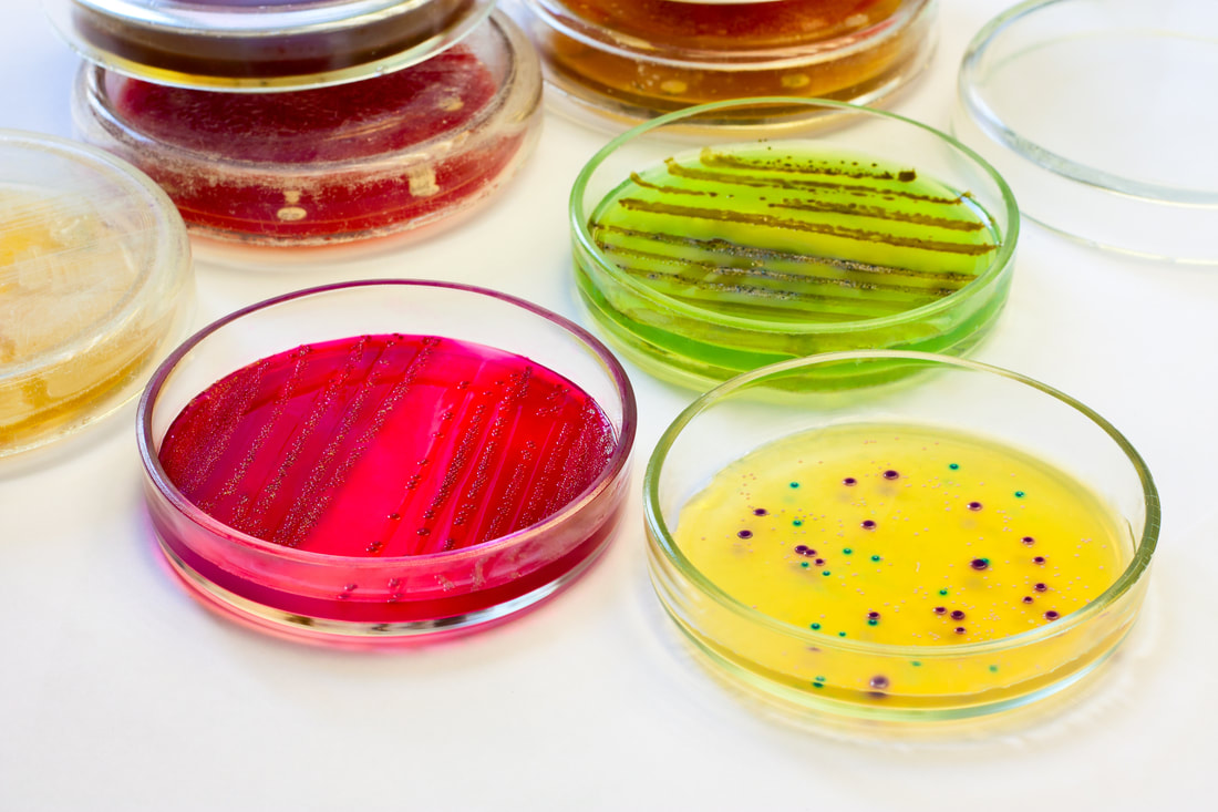 agar single parents Laboratory methods a if you make the agar plates several days in advance and let since the population of cells that is produced from a single parent cell.